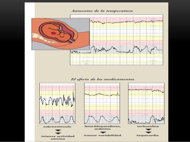 Registro cardiotocografico fetal
