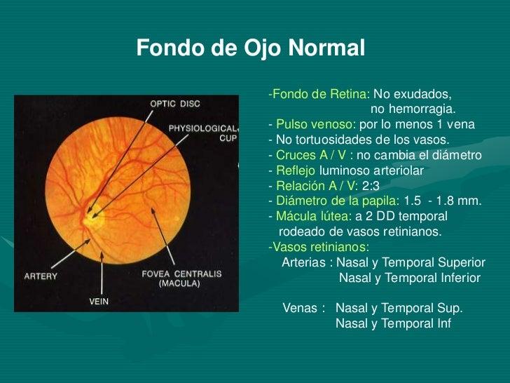 81dcf126f5 Nasal y Temporal Inf; 11.