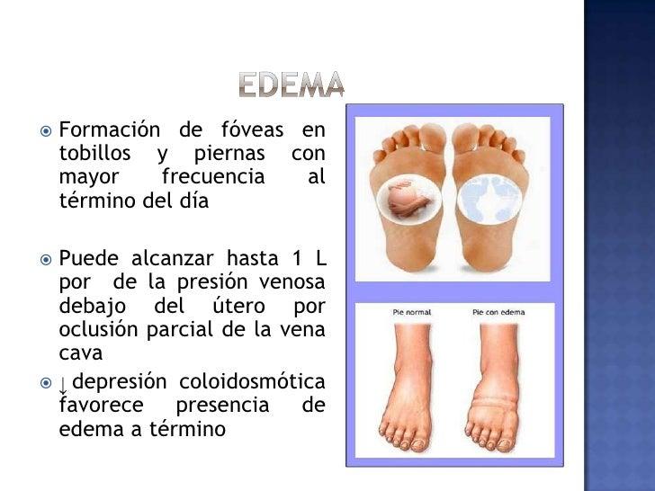 EDEMA<br />Formación de fóveas en tobillos y piernas con mayor frecuencia al término del día<br />Puede alcanzar hasta 1 L...