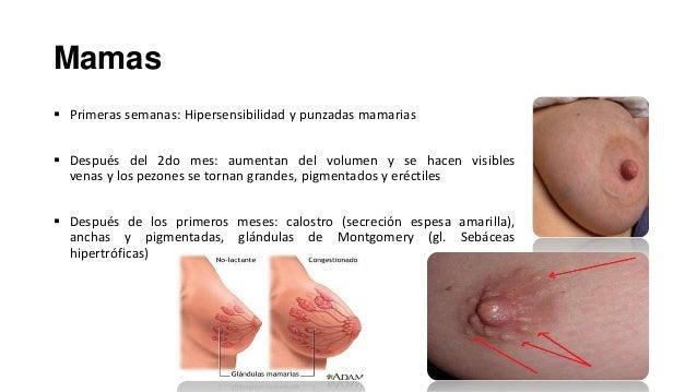 Las manchas connaturales de pigmento en el cuerpo