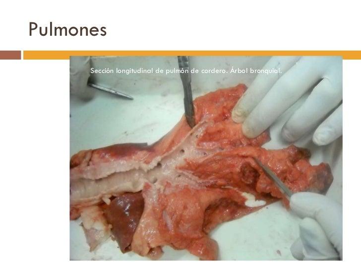 Pulmones <ul><li>Sección longitudinal de pulmón de cordero. Árbol bronquial. </li></ul>
