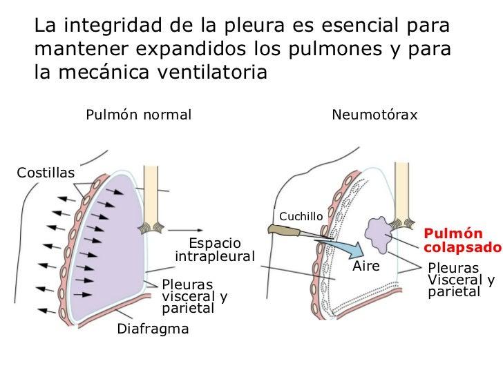 La integridad de la pleura es esencial para mantener expandidos los pulmones y para la mecánica ventilatoria Cuchillo Pulm...