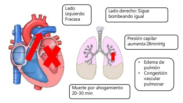 Lado izquierdo: Fracasa Lado derecho: Sigue bombeando igual Presión capilar aumenta 28mmHg • Edema de pulmón • Congestión ...