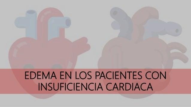 EDEMA EN LOS PACIENTES CON INSUFICIENCIA CARDIACA