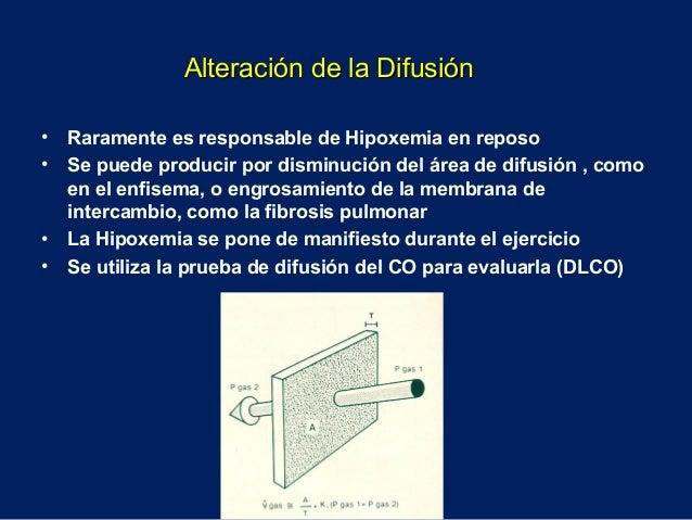 • Raramente es responsable de Hipoxemia en reposo• Se puede producir por disminución del área de difusión , comoen el enfi...