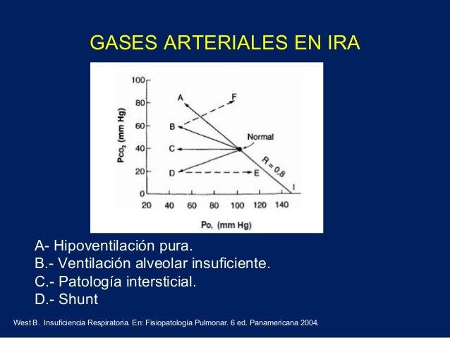 Clasificación de IR• Según la evolución clínica:- Aguda- Crónica- Crónica reagudizada• Según presente Hipoventilación Alve...