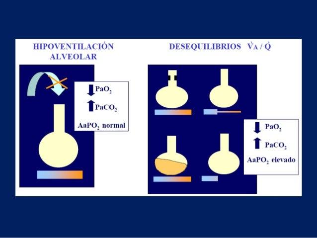 "CLASIFICACIÓN Y CLÍNICAHall J. Schmidt G. ""Pathophysiology and Differential diagnosis of Acute Respiratory Failure"" Princi..."
