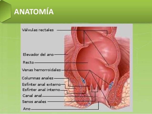 hemoroide rectal