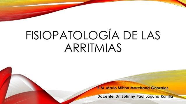Fisiopatología de las arritmias