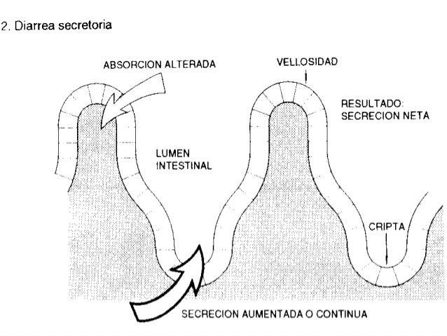 FisiopatologíA De Las Diarreas