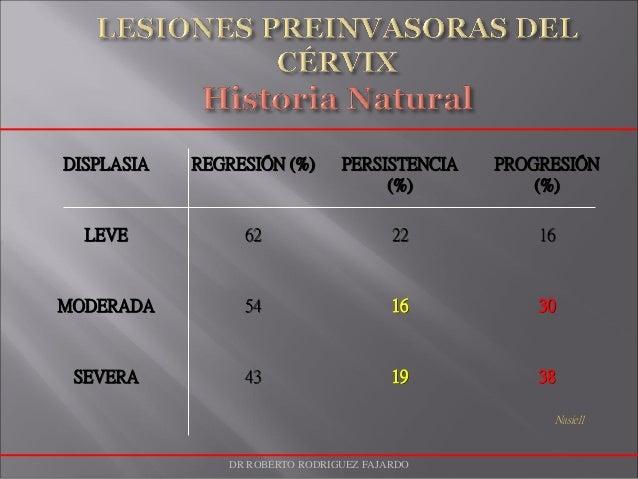 DISPLASIA REGRESIÓN (%) PERSISTENCIA (%) PROGRESIÓN (%) LEVE 62 22 16 MODERADA 54 16 30 SEVERA 43 19 38 Nasiell DR ROBERTO...