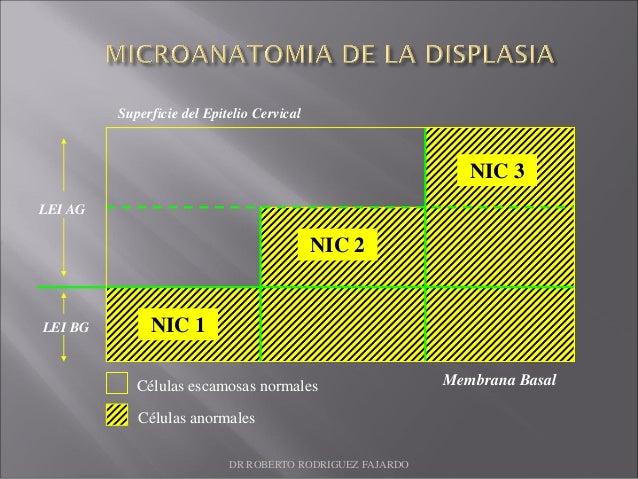 NIC 2 NIC 1 NIC 3 Células anormales Células escamosas normales Superficie del Epitelio Cervical Membrana Basal LEI AG LEI ...