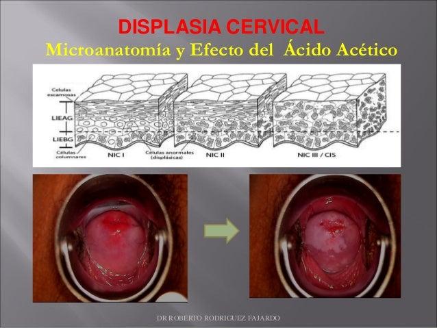 DISPLASIA CERVICAL Microanatomía y Efecto del Ácido Acético DR ROBERTO RODRIGUEZ FAJARDO