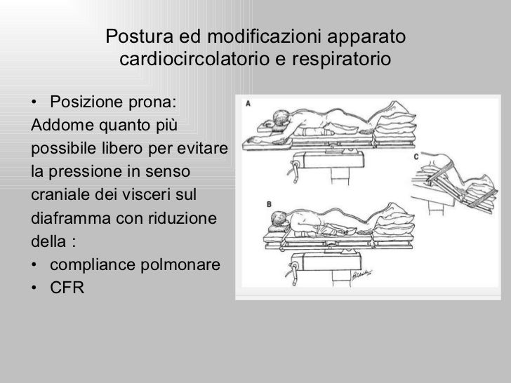 Fisiopatologia del danno da malposizionamento 2 for Mal di testa da pressione alta