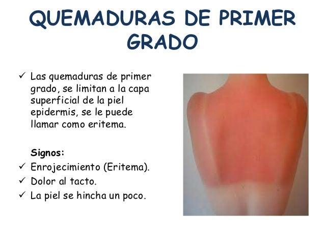 Fisiopatologia i sal la piel y sus enfermedades for Quemaduras de cuarto grado