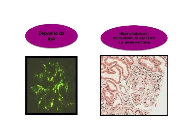 Fisiopatologia sistema urinario 2