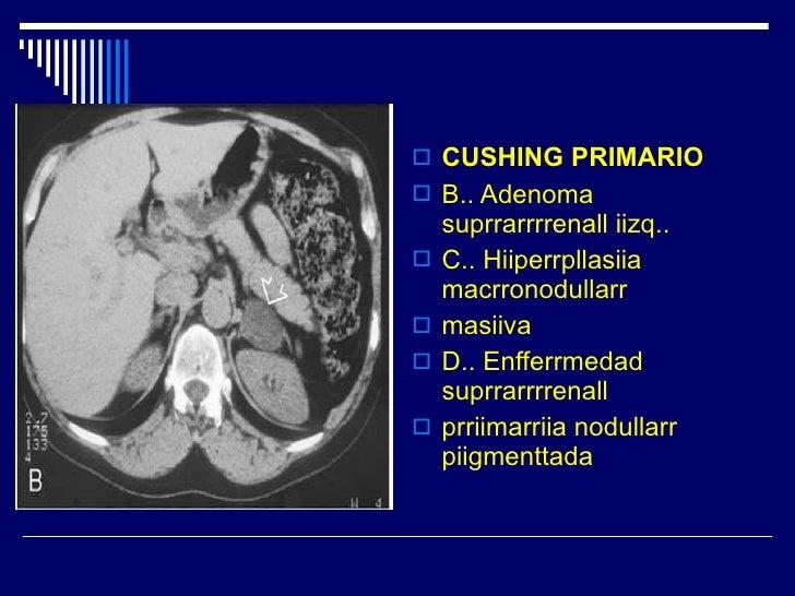 <ul><li>CUSHING PRIMARIO </li></ul><ul><li>B.. Adenoma suprrarrrrenall iizq.. </li></ul><ul><li>C.. Hiiperrpllasiia macrro...