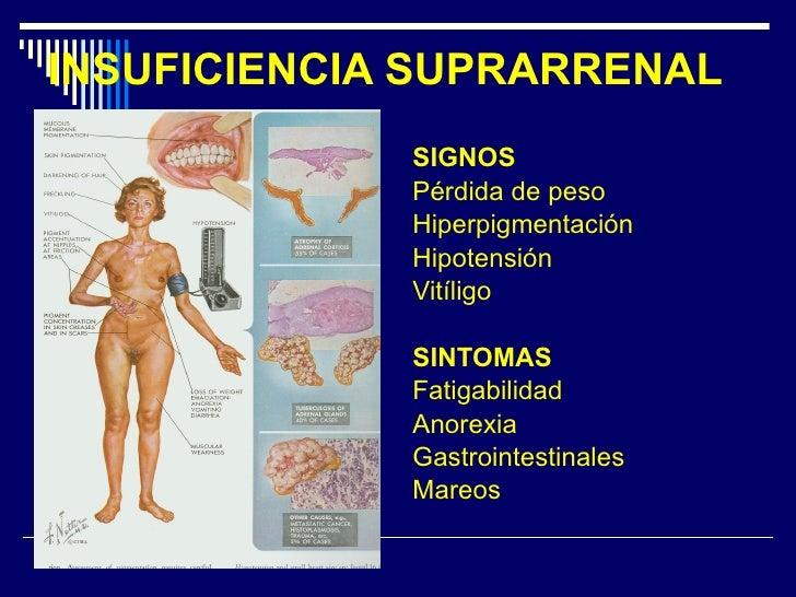 INSUFICIENCIA SUPRARRENAL <ul><li>SIGNOS </li></ul><ul><li>Pérdida de peso </li></ul><ul><li>Hiperpigmentación </li></ul><...