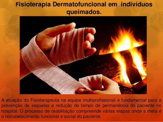 Fisioterapia Dermatofuncional em indivíduosqueimados.A atuação do Fisioterapeuta na equipe multiprofissional é fundamental...