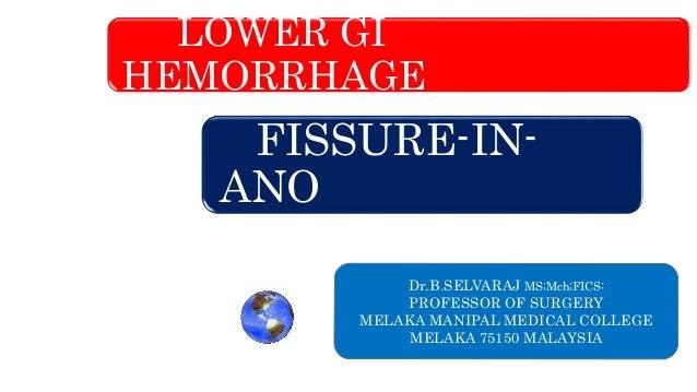 LOWER GI HEMORRHAGE FISSURE-IN- ANO Dr.B.SELVARAJ MS;Mch;FICS: PROFESSOR OF SURGERY MELAKA MANIPAL MEDICAL COLLEGE MELAKA ...