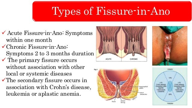 Fissure In Ano Lower Gi Hemorrhage