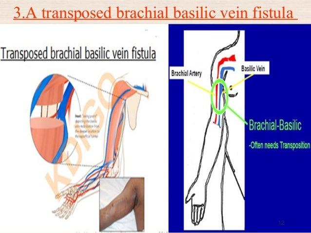 fistula (arteriovenous fistula -avf), Cephalic Vein
