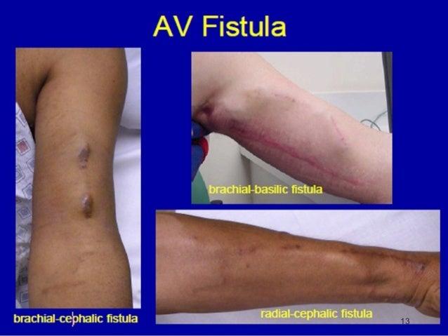 fistula arteriovenous fistula avf