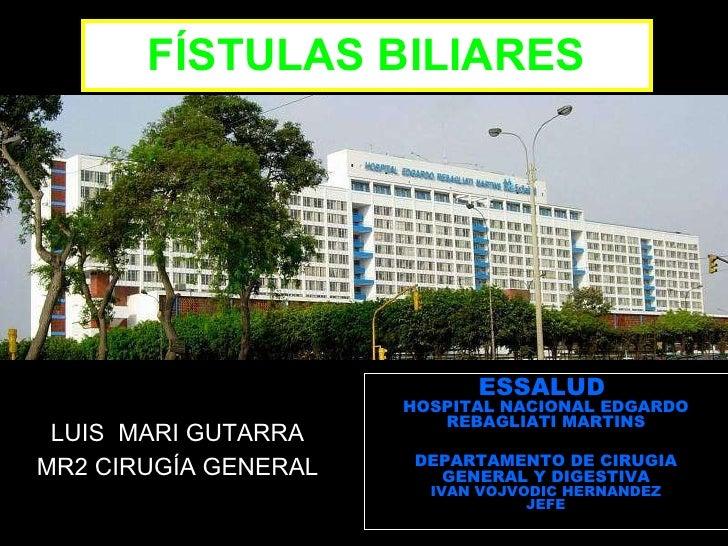 FÍSTULAS BILIARES LUIS  MARI GUTARRA MR2 CIRUGÍA GENERAL ESSALUD  HOSPITAL NACIONAL EDGARDO REBAGLIATI MARTINS DEPARTAMENT...