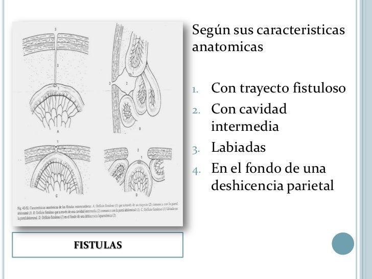 FACTORES RELACIONADOS CON LACIRUGIAa.   Uso de capitonaje en el cierre de     laparotomiab.   Empleo de protesis para cubr...