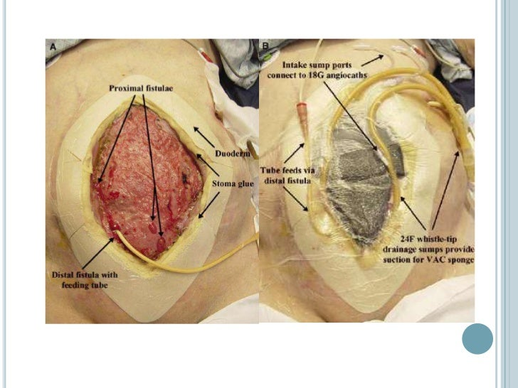 ANTISECRETORES   Se empleara como coadyuvante al cierre la fistula, al    reducir la secrecion gastrica