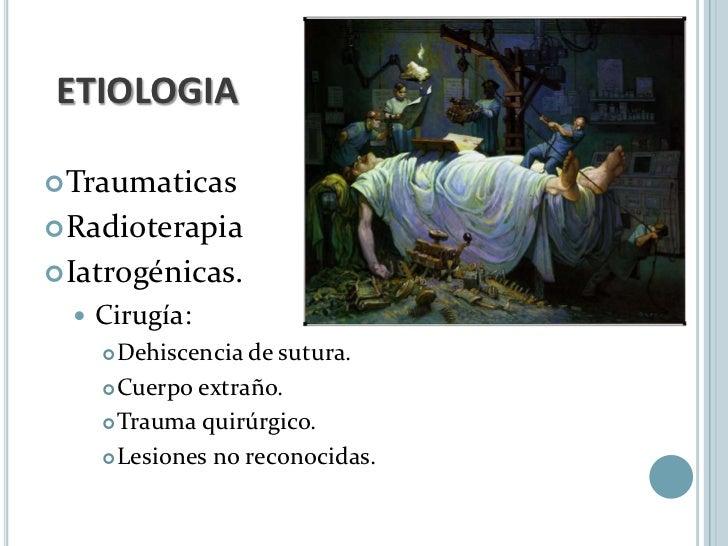 ETIOLOGIA Traumaticas Radioterapia Iatrogénicas.     Cirugía:       Dehiscencia de sutura.       Cuerpo extraño.    ...