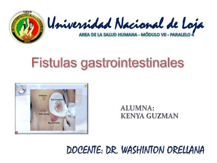Universidad Nacional de Loja<br />AREA DE LA SALUD HUMANA - MÓDULO VII - PARALELO 4<br />Fistulas gastrointestinales <br /...