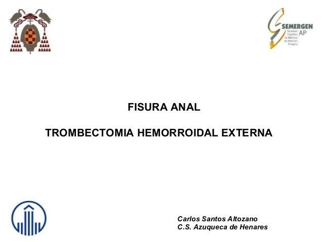 FISURA ANAL TROMBECTOMIA HEMORROIDAL EXTERNA Carlos Santos Altozano C.S. Azuqueca de Henares