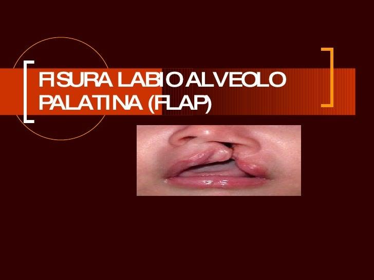 FISURA LABIO ALVEOLO PALATINA (FLAP)