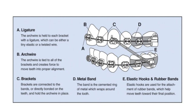 orthodontic tooth movement ideal rate and force Aim: to investigate light forces for experimental tooth movement method: light  orthodontic forces of 12, 36, 65, and 10 g force (gf) were applied for 14 days to.
