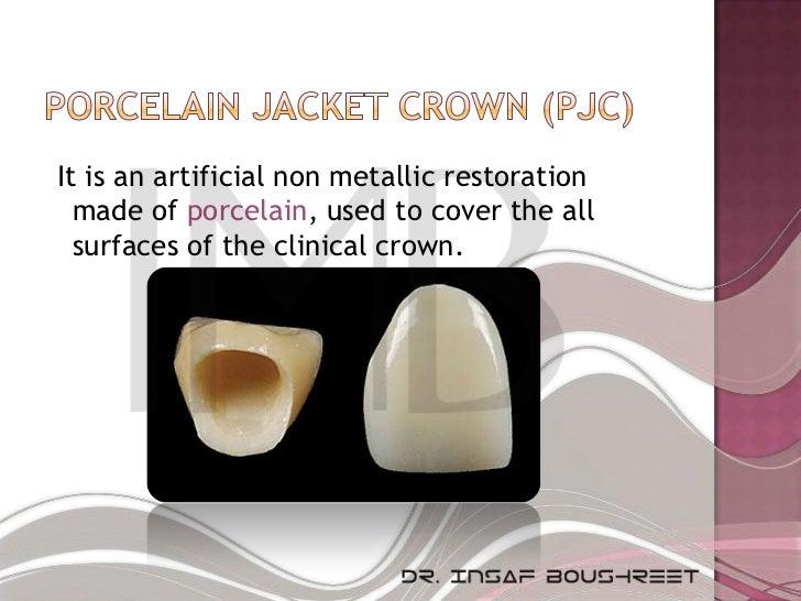 Fixed prosthodontics lesson 3