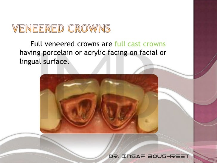 Full veneered crowns are full cast crownshaving porcelain or acrylic facing on facial orlingual surface.