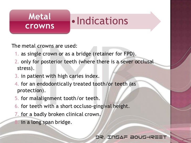 Metal     crowns              •IndicationsThe metal crowns are used: 1. as single crown or as a bridge (retainer for FPD)....