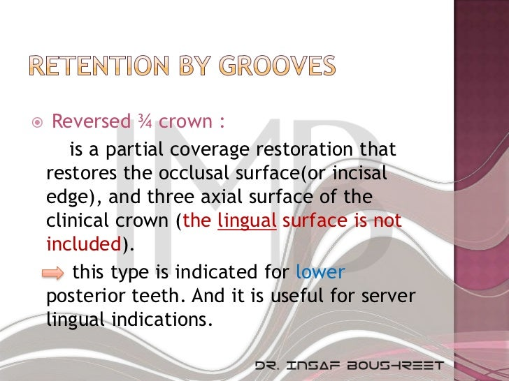     Reversed ¾ crown :       is a partial coverage restoration that    restores the occlusal surface(or incisal    edge),...