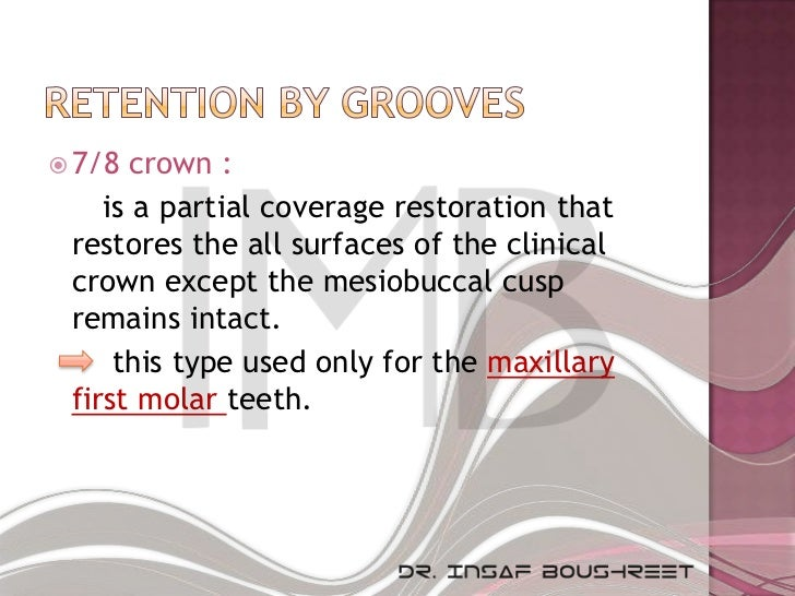  7/8 crown :    is a partial coverage restoration that restores the all surfaces of the clinical crown except the mesiobu...