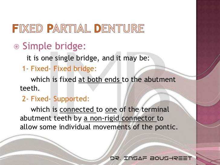    Simple bridge:      it is one single bridge, and it may be:     1- Fixed- Fixed bridge:        which is fixed at both ...