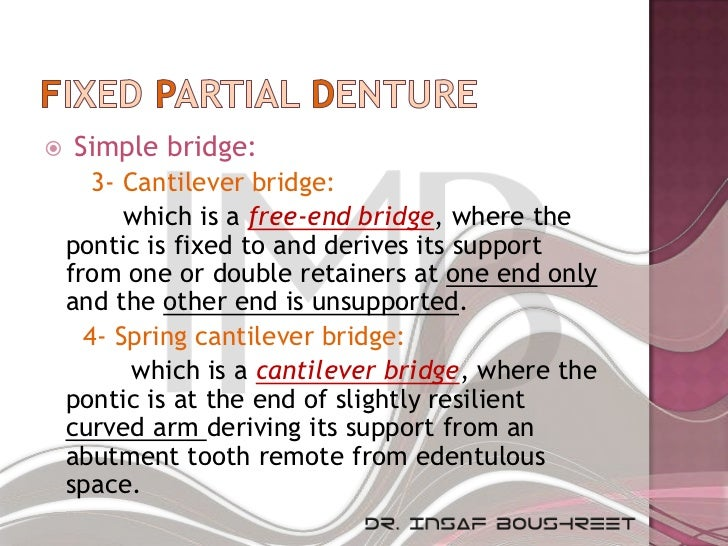    Simple bridge:       3- Cantilever bridge:          which is a free-end bridge, where the    pontic is fixed to and de...