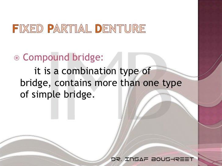     Compound bridge:        it is a combination type of    bridge, contains more than one type    of simple bridge.