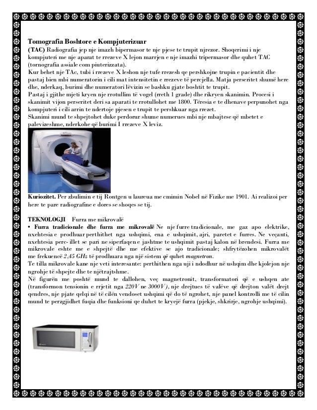 Tomografia Boshtore e Kompjuterizuar (TAC) Radiografia jep nje imazh bipermasor te nje pjese te trupit njrezor. Shoqerimi ...