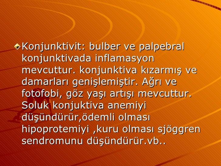 <ul><li>Konjunktivit: bulber ve palpebral konjunktivada inflamasyon mevcuttur. konjunktiva kızarmış ve damarları genişlemi...