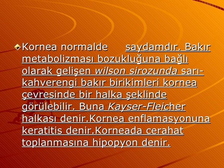 <ul><li>Kornea normalde saydamdır. Bakır metabolizması bozukluğuna bağlı olarak gelişen  wilson sirozunda  sarı-kahverengi...