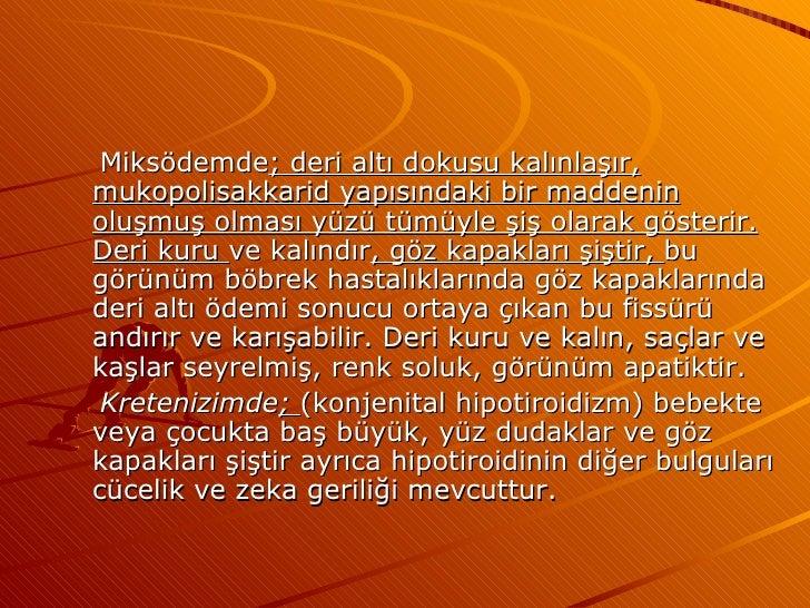 <ul><li>Miksödemde ;   deri altı dokusu kalınlaşır, mukopolisakkarid yapısındaki bir maddenin oluşmuş olması yüzü tümüyle ...
