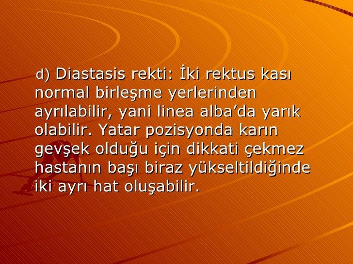 <ul><li>d)  Diastasis rekti: İki rektus kası normal birleşme yerlerinden ayrılabilir, yani linea alba'da yarık olabilir. Y...