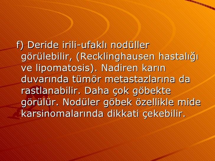 <ul><li>f) Deride irili-ufaklı nodüller görülebilir, (Recklinghausen hastalığı ve lipomatosis). Nadiren karın duvarında tü...