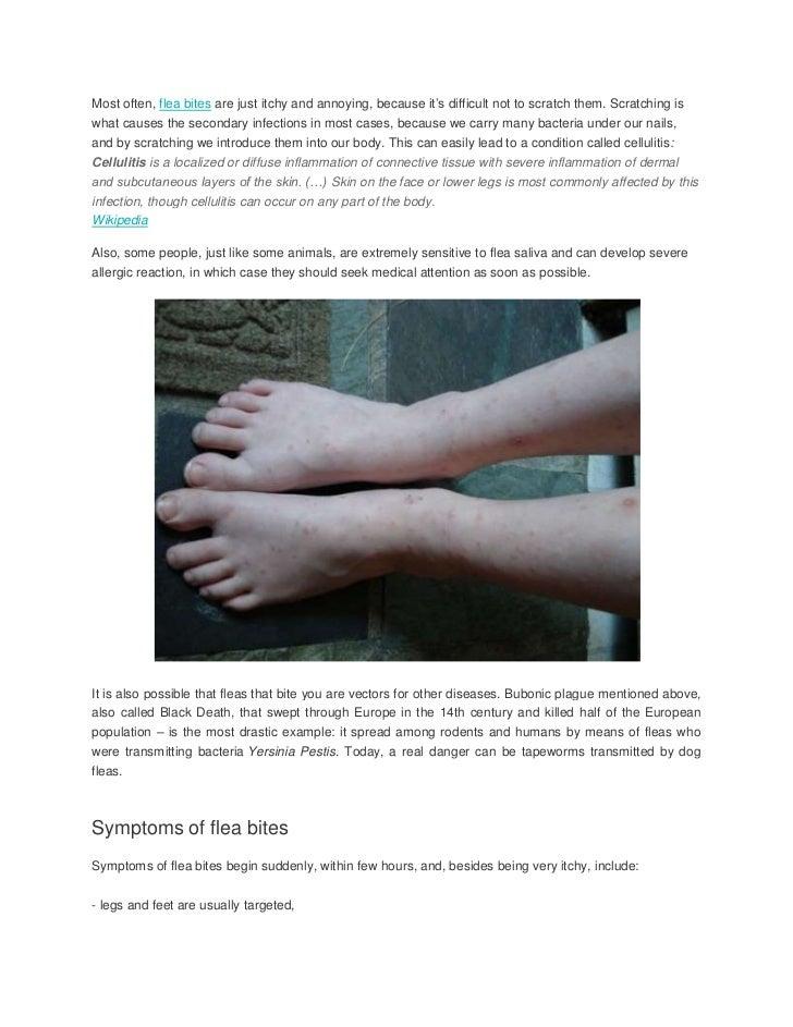 flea bites on humans. Black Bedroom Furniture Sets. Home Design Ideas